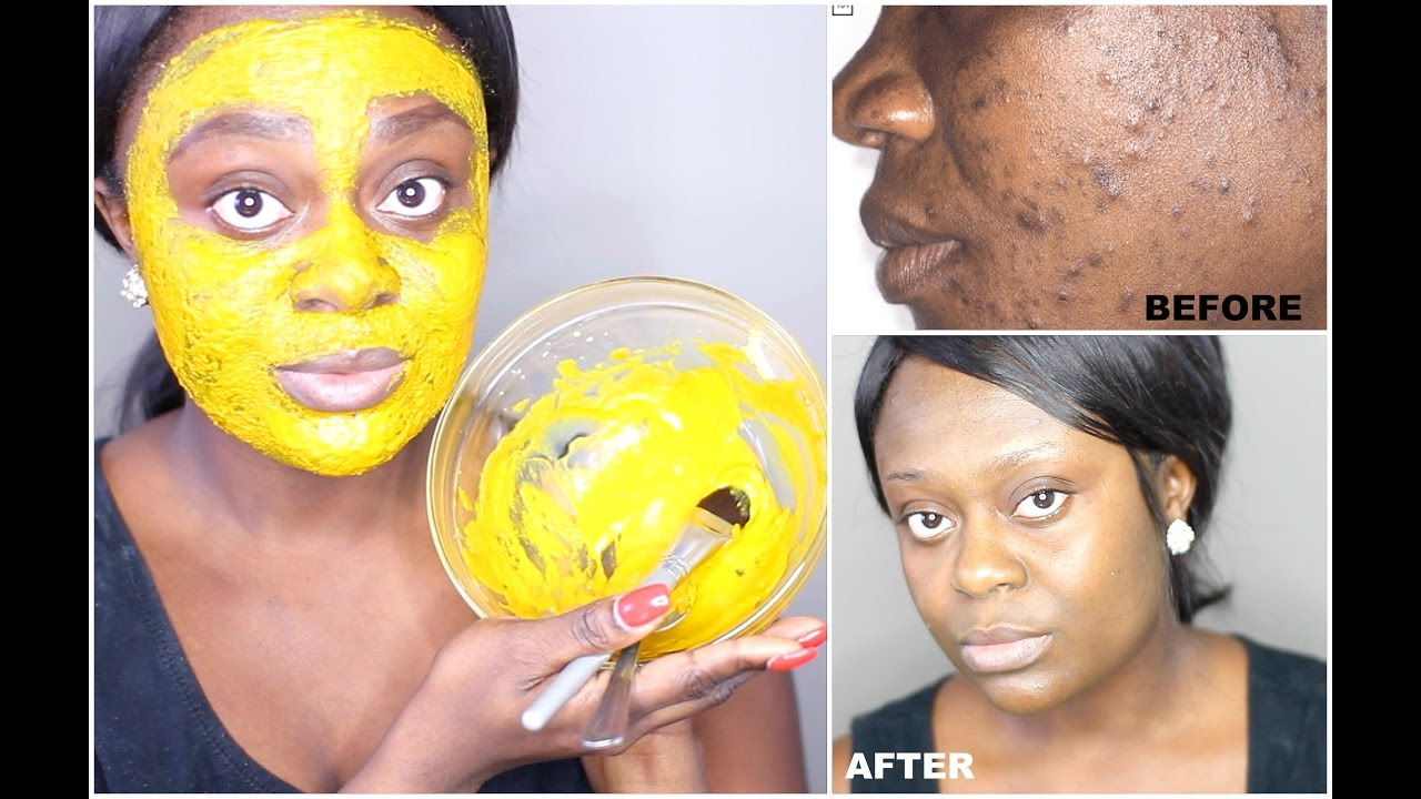 Diy Turmeric Face Mask Best Acne Treatment Get Clear