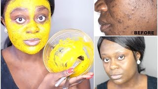 DIY TURMERIC FACE MASK | BEST ACNE TREATMENT | GET CLEAR, BRIGHT AND ACNE FREE SKIN IN 7 DAYS