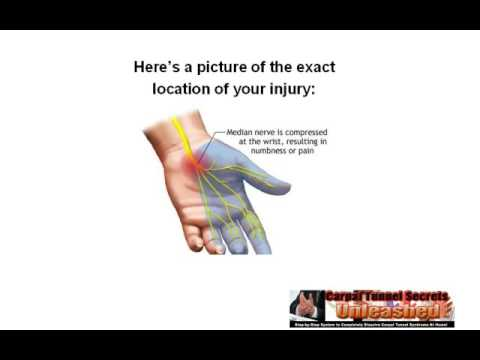 How to Cure Carpal Tunnel Syndrome Pain In As Little As 72 Hours | Carpal Tunnel Treatment