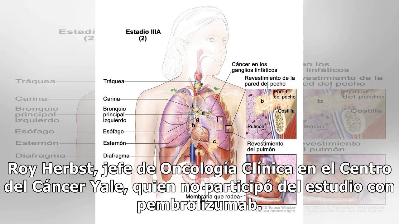 Hermosa Diafragma De Pecho Viñeta - Anatomía de Las Imágenesdel ...