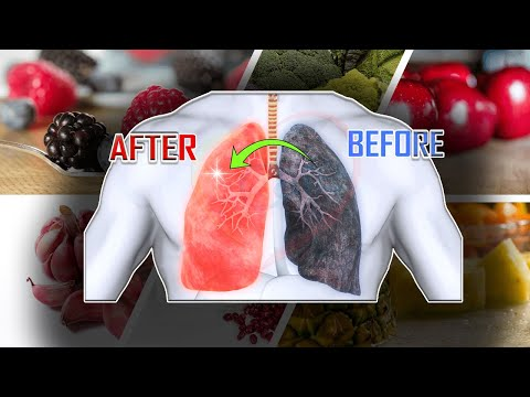 Best Foods for Healthy Lungs (Detox & Cleanse) Detox and Cleanse Your Lungs! Respiratory Therapy Zon