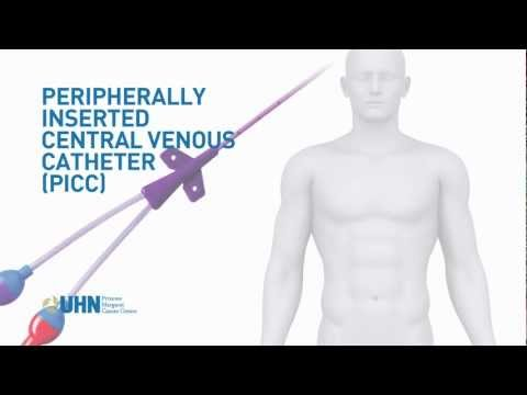 PICC (Peripherally Inserted Central Venous Catheter)