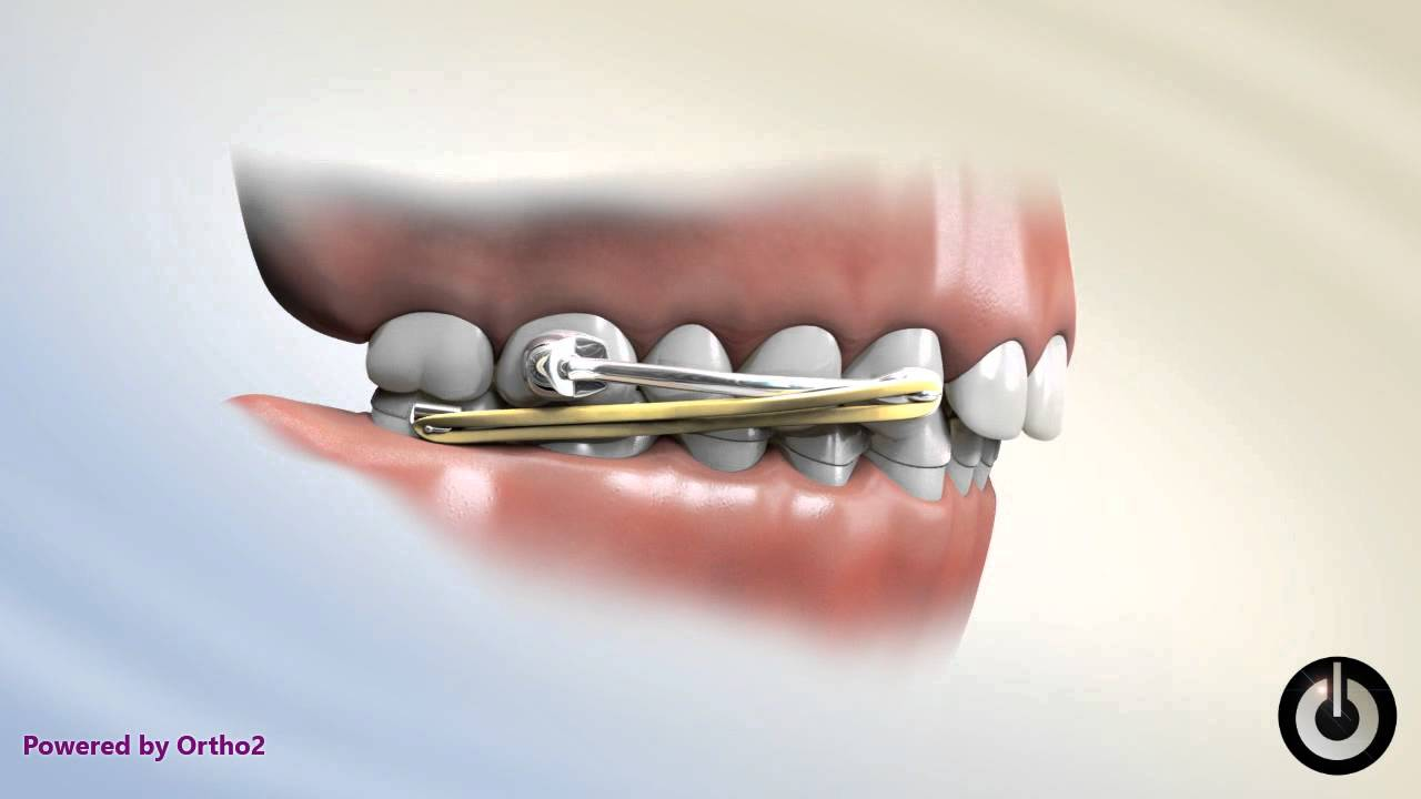 Carriere Appliance with Lower Essix Retainer by Dr Jared Gianquinto  OrthoArts