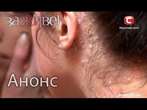 Псориаз волосистой части головы: симптомы и лечение