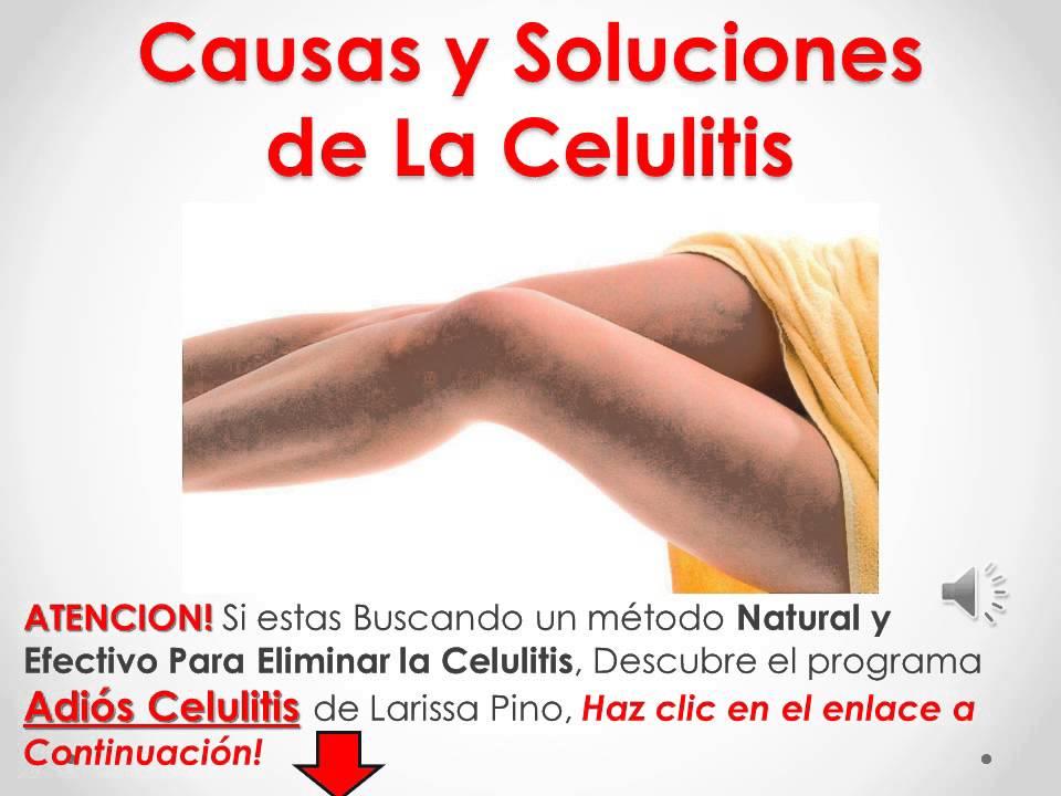 que es la celulitis causas