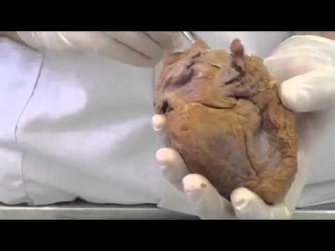 External features of the heart - Dr. Sarmad
