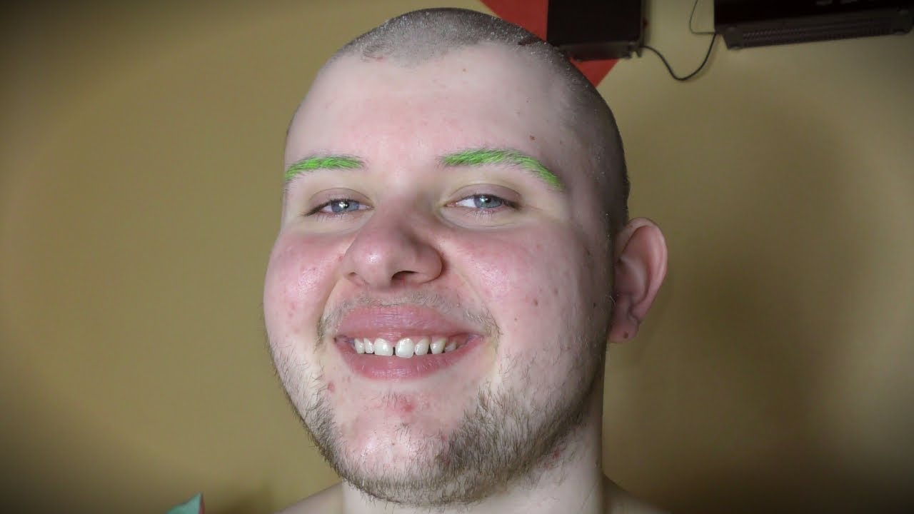 Endlich wieder Glatze!
