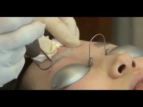 procedure clips spectra global tattoo