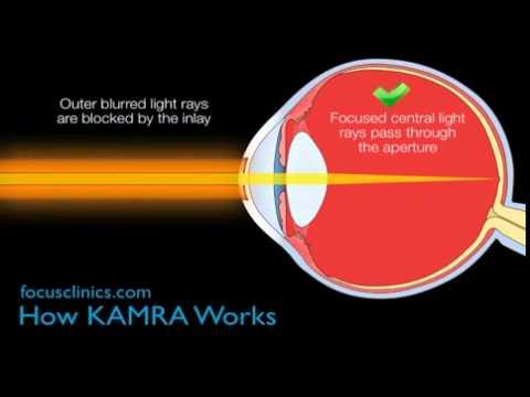 How does Karma inlay eye surgery work?