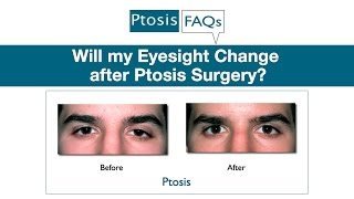 Will My Eyesight Change After Ptosis Surgery?