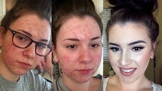 UPDATED | Acne Coverage Foundation Routine thumbnail