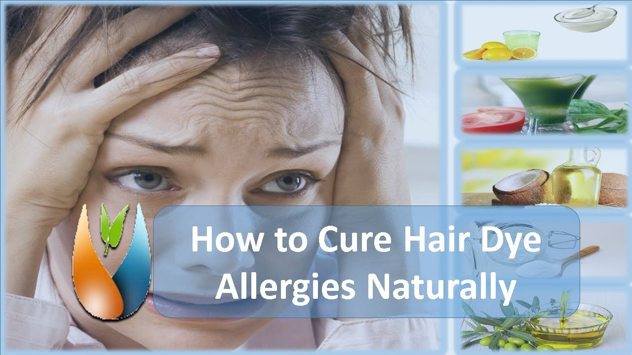 How To Cure Hair Dye Allergies Naturally Youtube