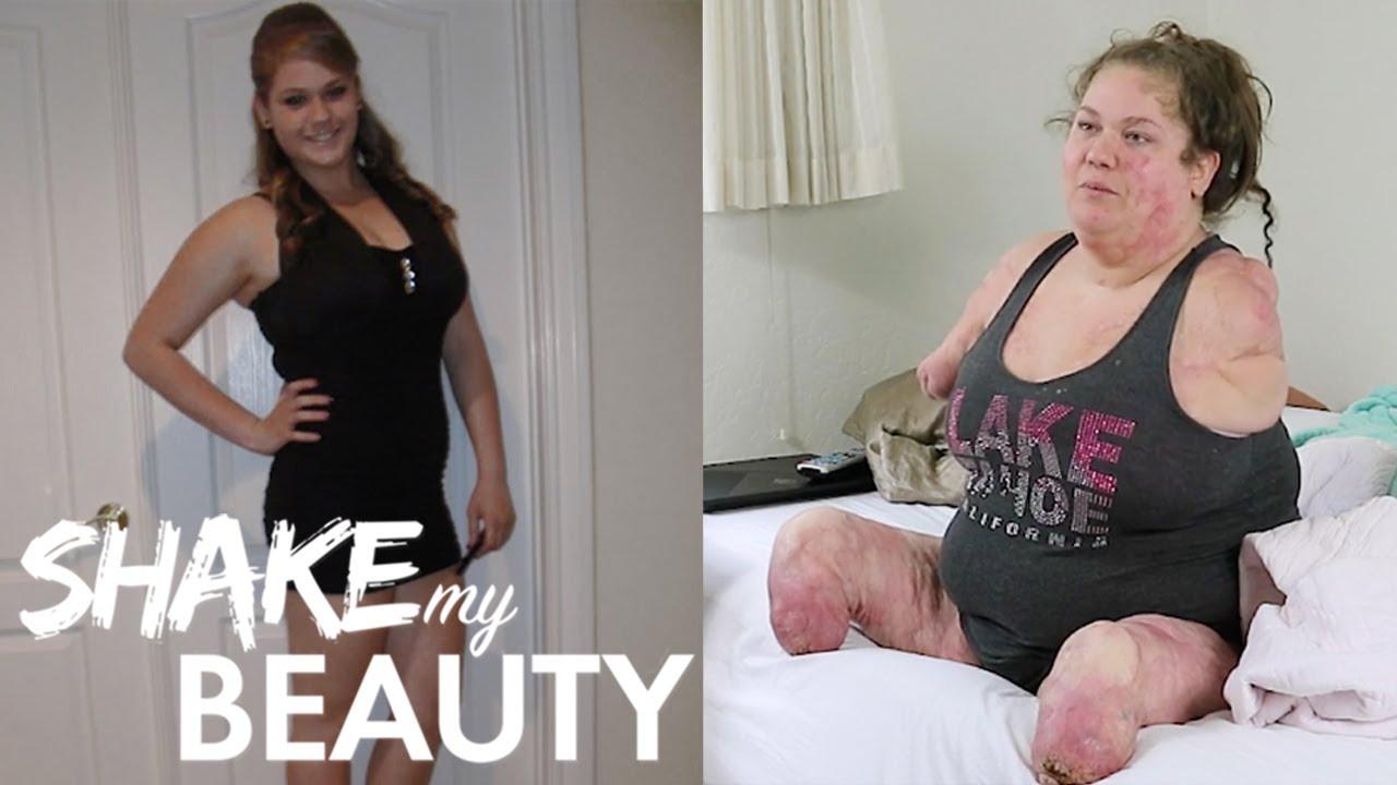 I Lost All My Limbs At 19 | SHAKE MY BEAUTY
