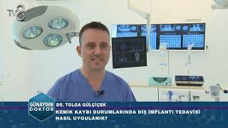 DİŞ İMPLANTI KİMLERE UYGULANIR? DR. TOLGA GÜLCİCEK