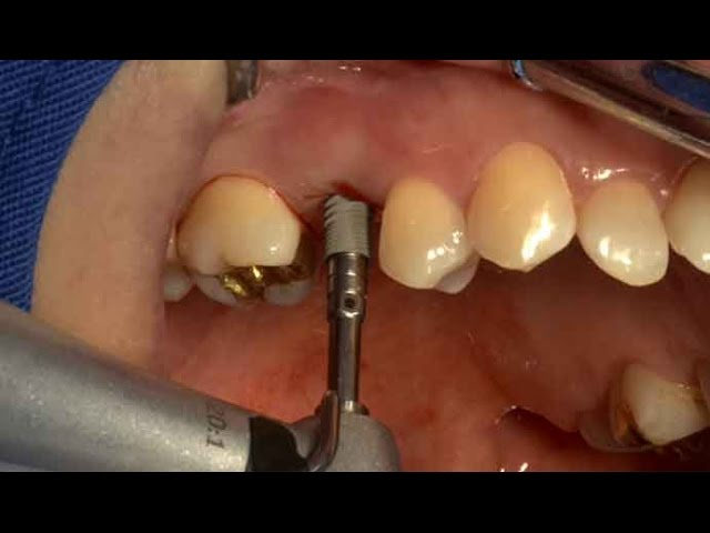 Dentium NR Line system – Flapless surgery