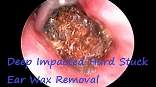 Most Irritating Ear Wax : Deep Impacted Hard Stuck Ear Wax Removal
