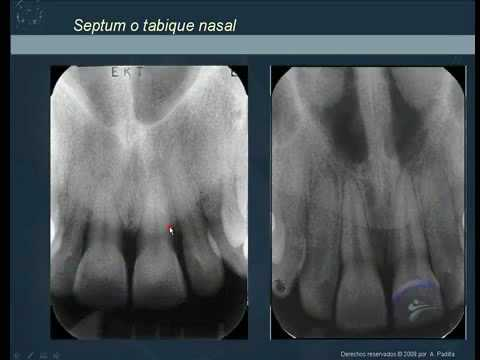 Anatomía radiográfica normal 1.Normal radiographic anatomy 1 - YouTube