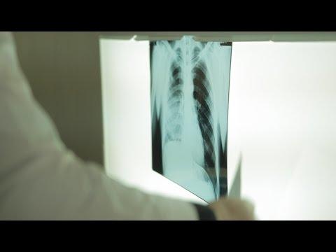 Туберкулез в тюрьмах: вернуть надежду