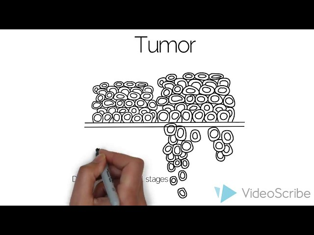 General Principles of Cancer Treatment