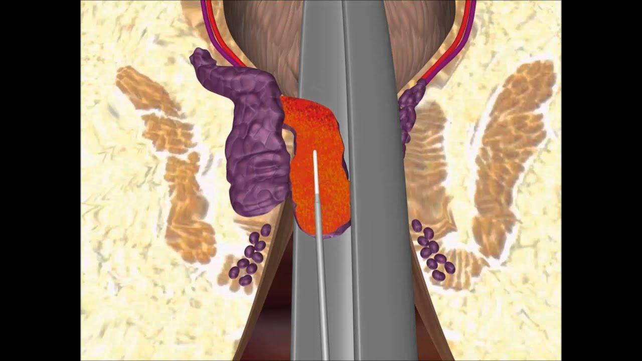 Lazer Hemoroid Ameliyatı: Lazerle Hemoroid Tedavisi