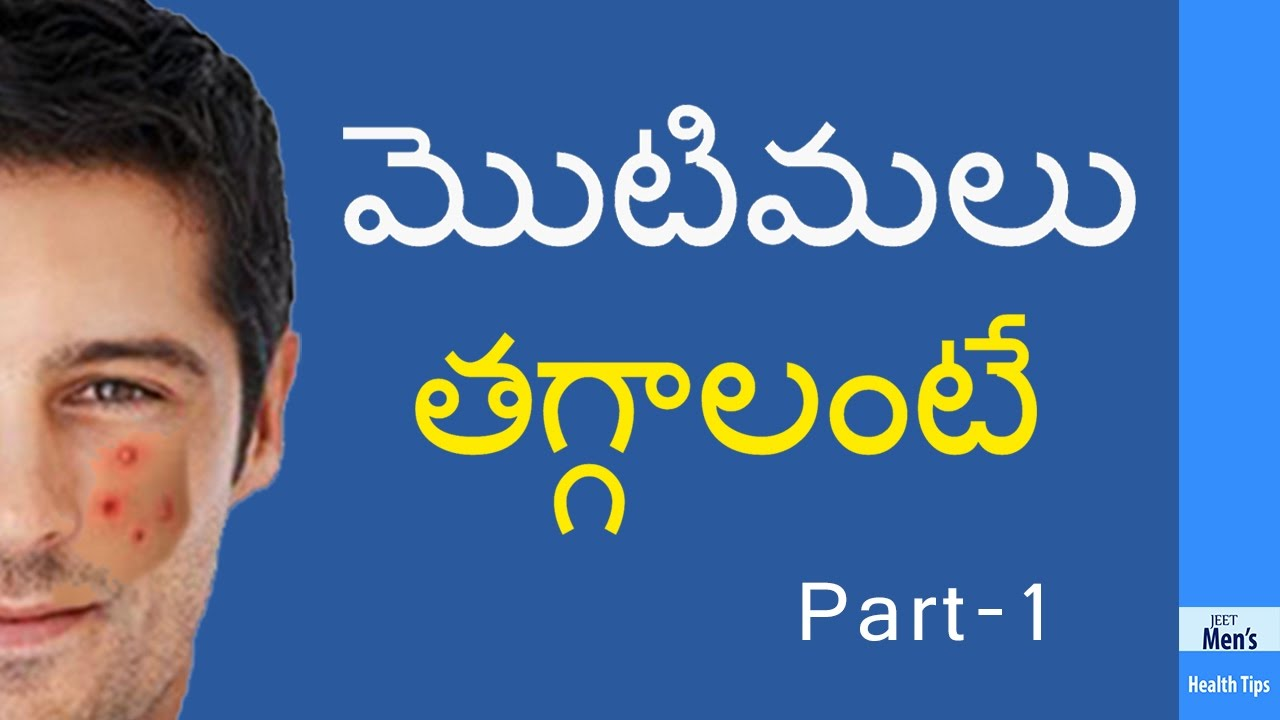 pimples removal on face at home for men in telugu - YouTube