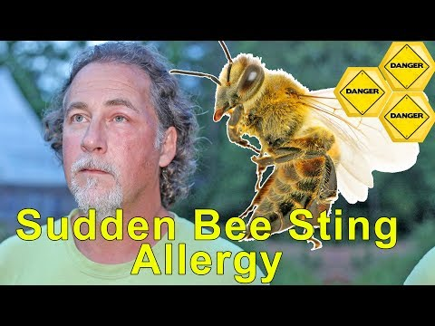Warning: Sudden Bee Sting Allergy - Signs, Symptoms, And Dangers Of Anaphylaxis