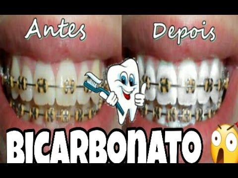Como Clarear Os Dentes Com Bicarbonato 2 Funciona Youtube