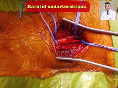 Karotis endarterektomi (carotid endarterectomy) - beyin damarlarinda ...