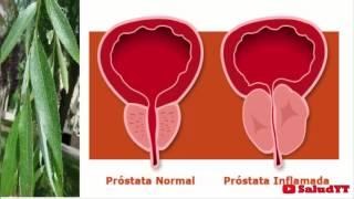 La mejor cura para la próstata en todo el mundo, no hay nada mejor!!