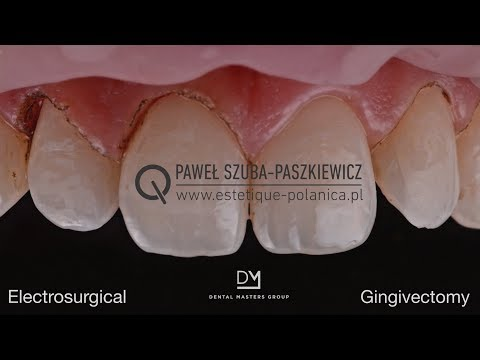 Electrosurgical Gingivectomy / Crown Lengthening - YouTube