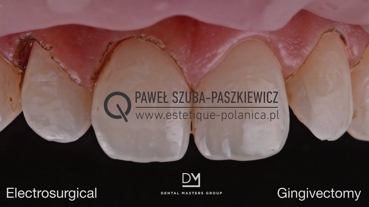 Electrosurgical Gingivectomy / Crown Lengthening