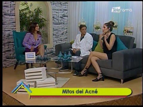 Dr. en Casa: Mitos del acné