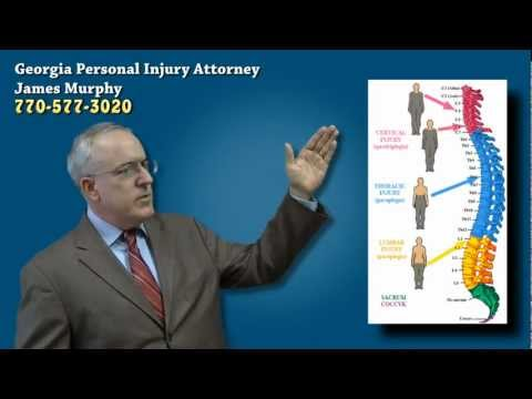 Spinal Cord & Paralysis Injuries from Auto Accident | Georgia Accident Attorney