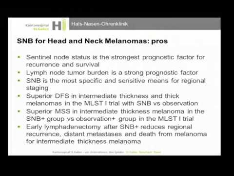 Malignant Melanoma State of the Art – Sentinel Lymph Node Biopsy