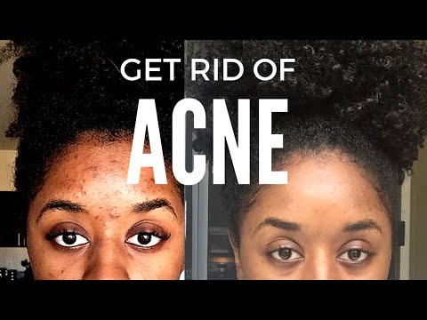 How To Get Rid of Acne l My Skincare Routine l Before & After
