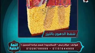 اللمة الحلوة - د/أحمد جلالة أخصائي جراحة التجميل - فيديو يوضح كيف تتم عملية شفط الدهون بالليزر