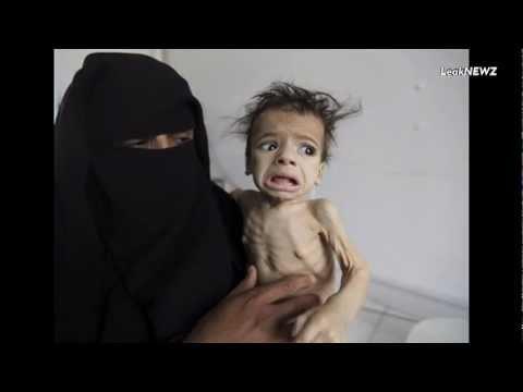Hunger yemen children