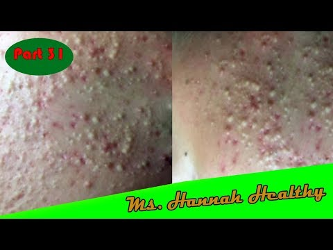acne-treatment-,popping-blackheads,-removal-blackheads-&-whiteheads-on-the-face-easy-#31