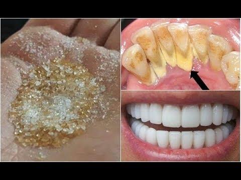 Bỏ ra 2 phút làm 1 trong 2 cách này răng trắng bóc, hết sạch mảng bám