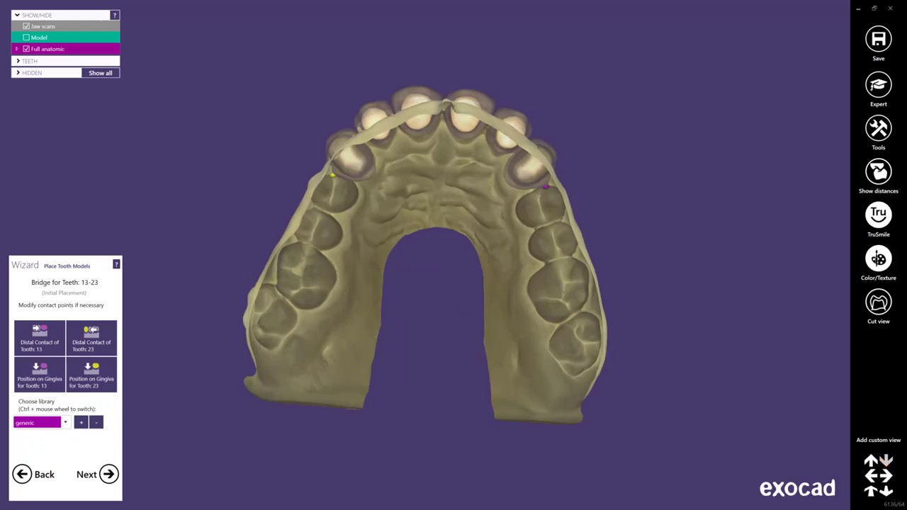 How to create a Digital Waxup Model with exocad DentalCAD 2016 and formlabs  form2 3D printer