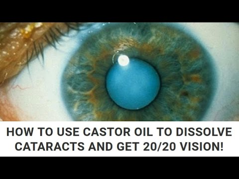 HOW TO USE CASTOR OIL TO DISSOLVE CATARACTS AND GET 20 20 VISION!