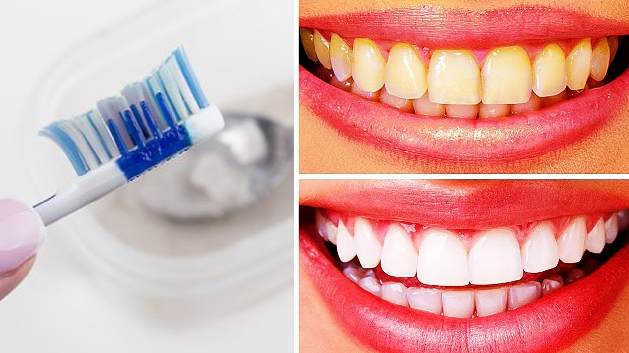 Whitening Teeth With Baking Soda Teeth Whitening At Home Youtube