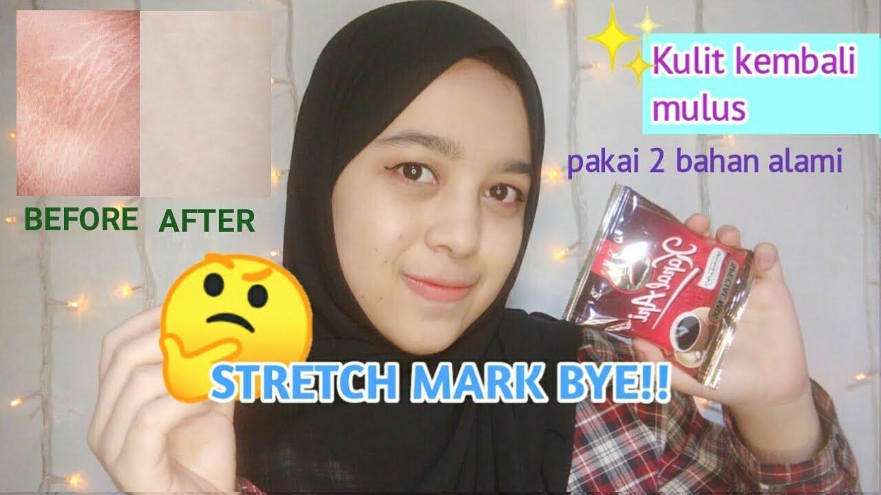 Cara Menghilangkan Stretch Mark Ampuh Dengan Bahan Alami Youtube