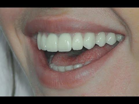 Настоящий результат в стоматологии. Критерии оценки