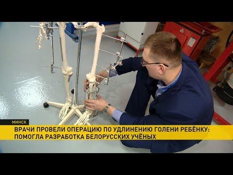 Белорусские хирурги удлинили голень 2-летнему ребёнку. Уникальная операция в СНГ!
