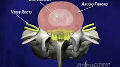hqdefault - Neck And Back Pain Clinic Albuquerque, Nm