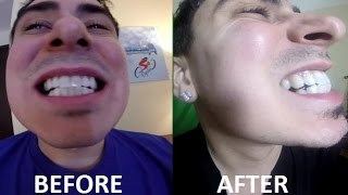 Crest 3D White Strips LUXE Teeth Before & After Professional Effect(, 2016-03-08T20:36:07.000Z)