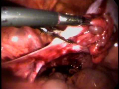 bilateral ovarian cysts