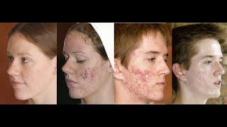 TS Skincare 30 Second Testimonial