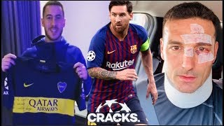¿MESSIdependencia en el BARÇA? | RIQUELME manda REGALO a HAZARD | SCALONI sufre accidente
